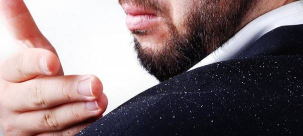 dandruff in men