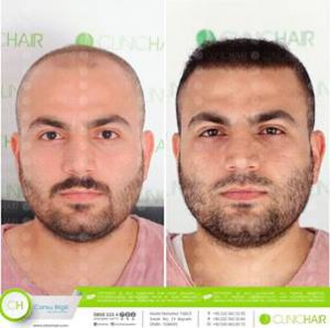 clinic-hair-before-after-hair-health-blog