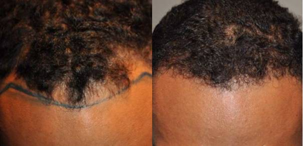before-and-after-image-of-the-hair-transplantation-operation-at-wimpole-hair-clinic-hair-health-blog