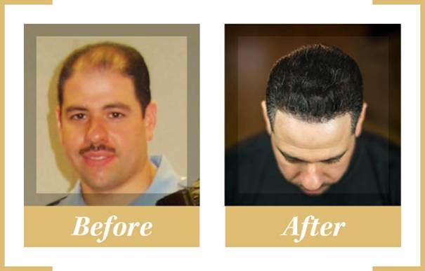 restore-hair-clinics-hair-transplant-before-after-hair-health-blog