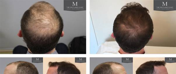 the-maitland-hair-transplant-before-after-hair-health-blog