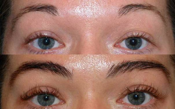 Transplanted Eyebrows and Hair