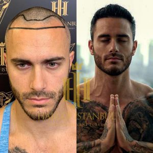 Mike Chabot Hair Transformation Hair of Istanbul