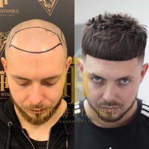 Ollie Foster Hair Transformation Hair of Istanbul