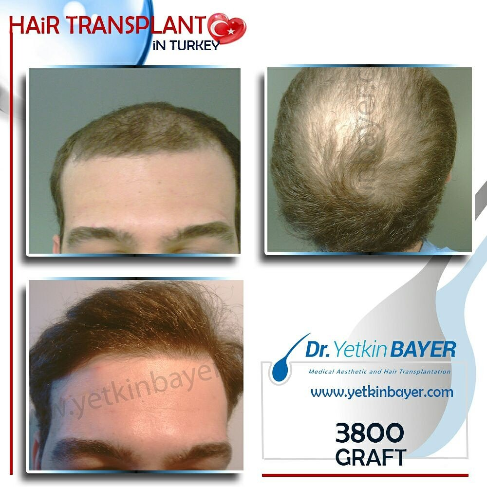 Dr.Yetkin Bayer Patient