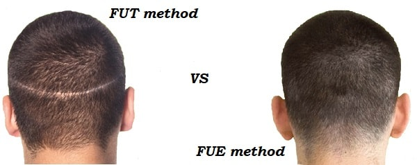 what is fue hair transplant steps and procedures