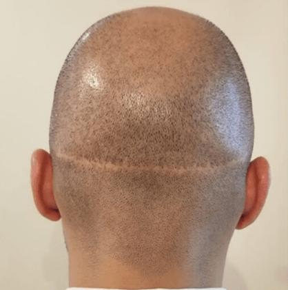 what is fut hair transplant steps and procedures